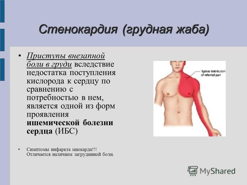 Стенокардия (грудная жаба) Приступы внезапной боли в груди вследствие недостатка поступления кислорода к сердцу по сравнению с потребностью в нем, является одной из форм проявления ишемической болезни сердца (ИБС) Симптомы инфаркта миокарда!!! Отлича