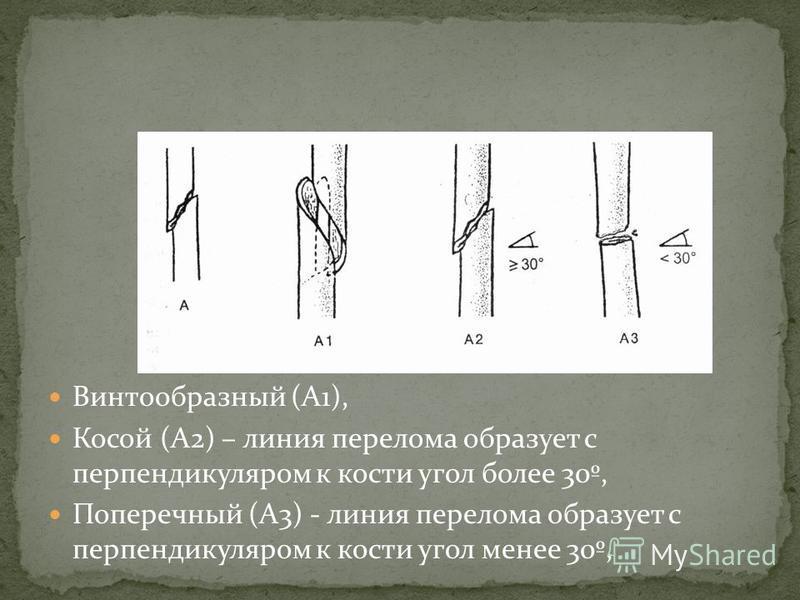 Винтообразный (А1), Косой (А2) – линия перелома образует с перпендикуляром к кости угол более 30º, Поперечный (А3) - линия перелома образует с перпендикуляром к кости угол менее 30º,