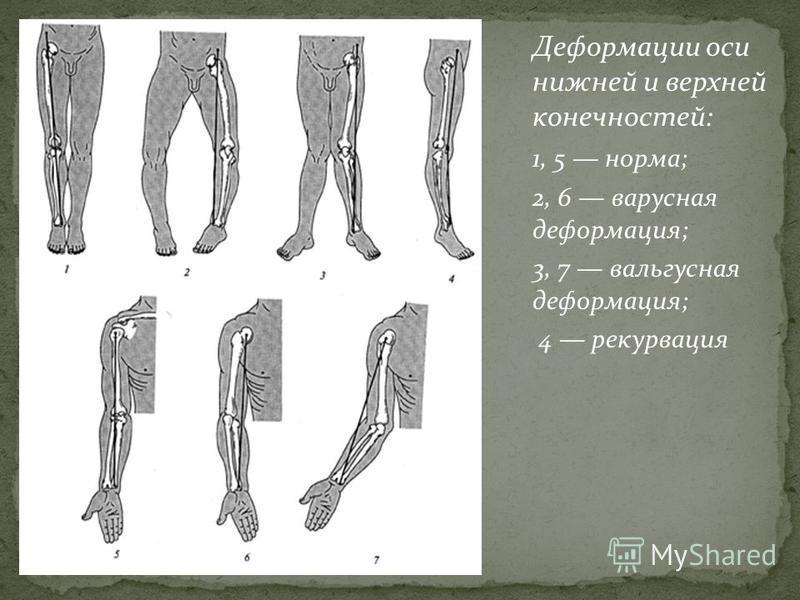 Деформации оси нижней и верхней конечностей: 1, 5 норма; 2, 6 варусная деформация; 3, 7 вальгусная деформация; 4 рекурвация