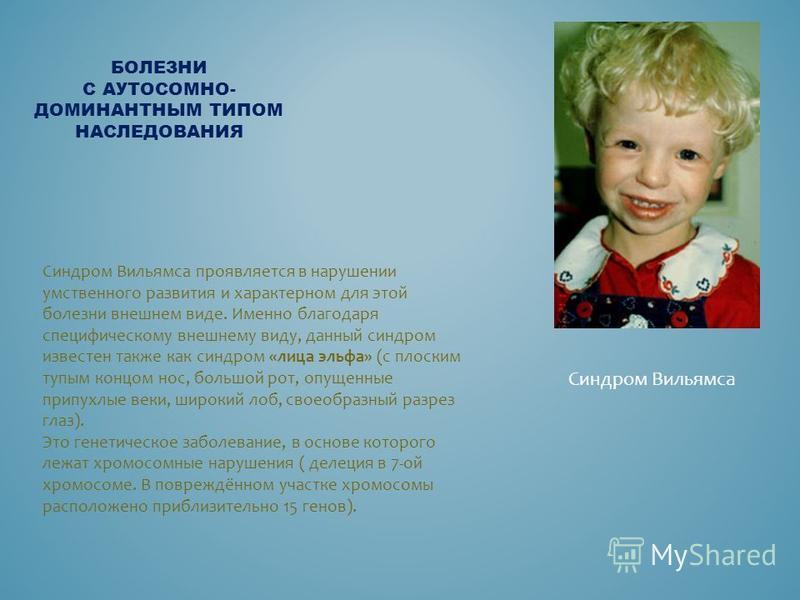 БОЛЕЗНИ С АУТОСОМНО- ДОМИНАНТНЫМ ТИПОМ НАСЛЕДОВАНИЯ Синдром Вильямса Синдром Вильямса проявляется в нарушении умственного развития и характерном для этой болезни внешнем виде. Именно благодаря специфическому внешнему виду, данный синдром известен так