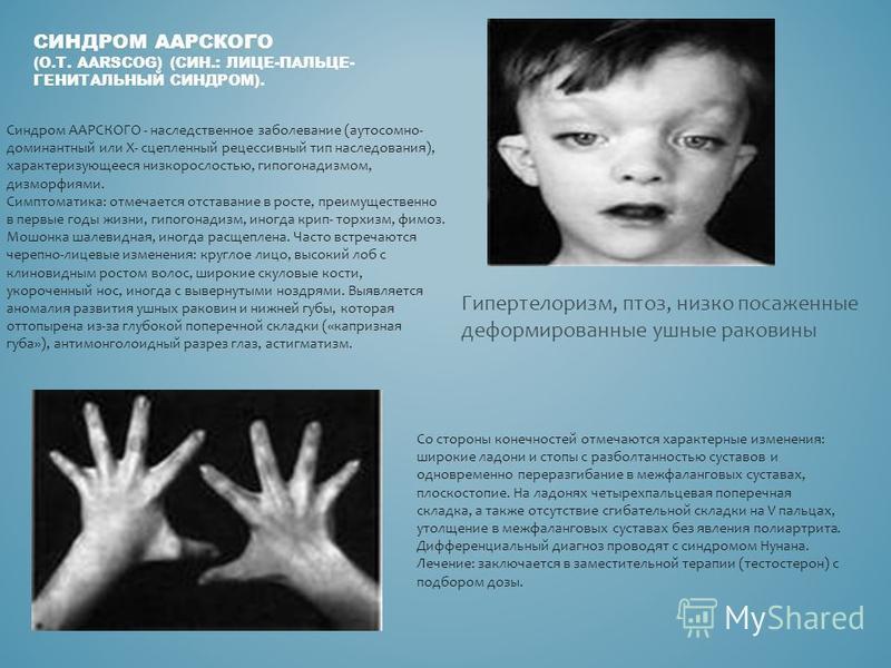 СИНДРОМ ААРСКОГО (О.Т. AARSCOG) (СИН.: ЛИЦЕ-ПАЛЬЦЕ- ГЕНИТАЛЬНЫЙ СИНДРОМ). Гипертелоризм, птоз, низко посаженные деформированные ушные раковины Синдром ААРСКОГО - наследственное заболевание (аутосомно- доминантный или Х- cцепленный рецессивный тип нас