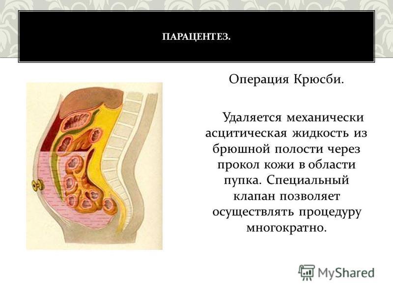 ПАРАЦЕНТЕЗ. Операция Крюсби. Удаляется механически асцитическая жидкость из брюшной полости через прокол кожи в области пупка. Специальный клапан позволяет осуществлять процедуру многократно.
