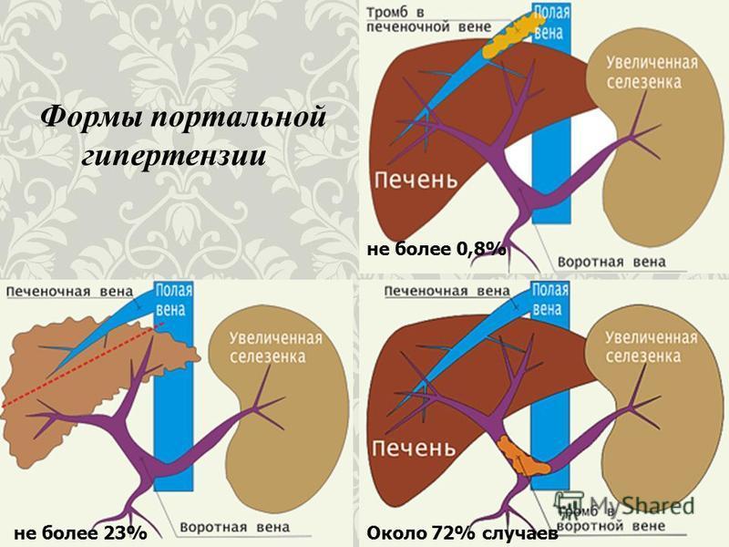 Формы портальной гипертензии не более 0,8% не более 23%Около 72% случаев