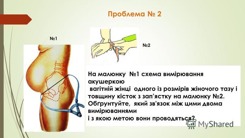 Проблема 2 На малюнку 1 схема вимірювання акушеркою вагітній жінці одного із розмірів жіночого тазу і товщину кісток з запястку на малюнку 2. Обґрунтуйте, який зв'язок між цими двома вимірюваннями і з якою метою вони проводяться? 1 2