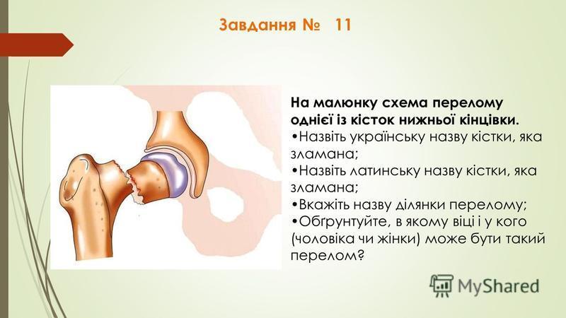 Завдання 11 На малюнку схема перелому однієї із кісток нижньої кінцівки. Назвіть українську назву кістки, яка зламана; Назвіть латинську назву кістки, яка зламана; Вкажіть назву ділянки перелому; Обґрунтуйте, в якому віці і у кого (чоловіка чи жінки)