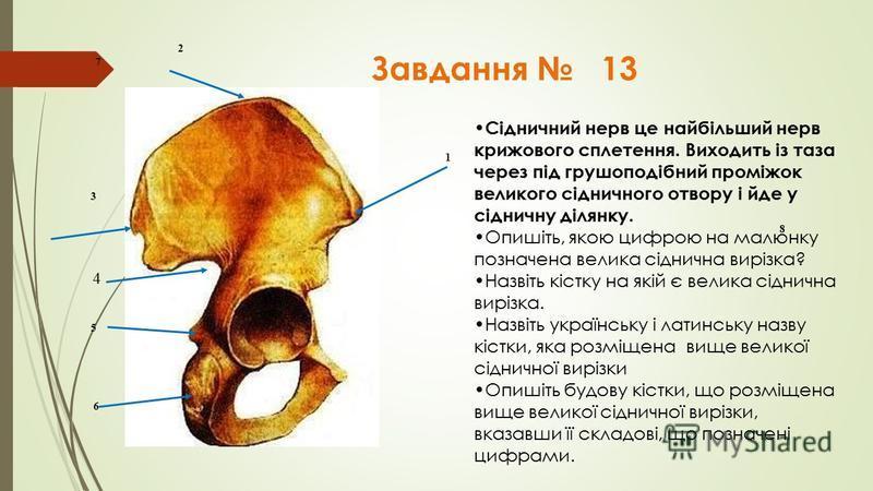 Завдання 13 2 7 8 1 3 4 5 6 Сідничний нерв це найбільший нерв крижового сплетення. Виходить із таза через під грушоподібний проміжок великого сідничного отвору і йде у сідничну ділянку. Опишіть, якою цифрою на малюнку позначена велика сіднична вирізк