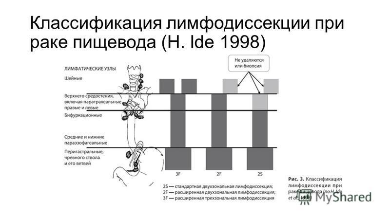 Классификация лимфодиссекции при раке пищевода (H. Ide 1998)