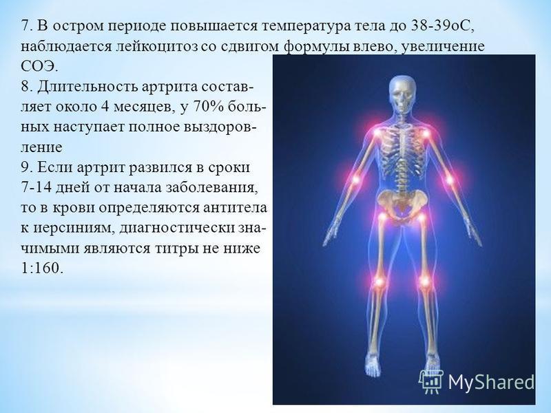 7. В остром периоде повышается температура тела до 38-39 оС, наблюдается лейкоцитоз со сдвигом формулы влево, увеличение СОЭ. 8. Длительность артрита составляет около 4 месяцев, у 70% больных наступает полное выздоровление 9. Если артрит развился в с