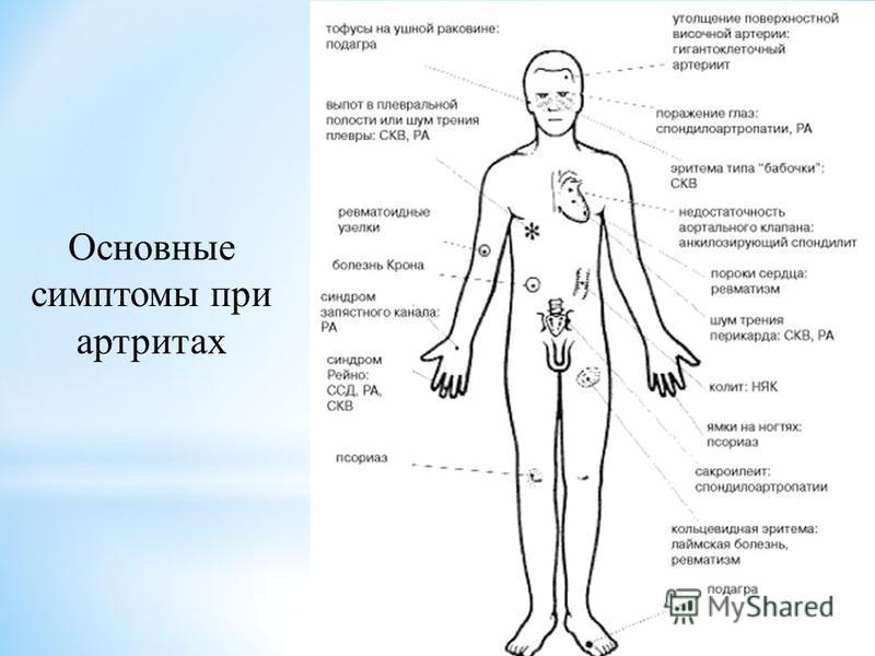 Основные симптомы при артритах