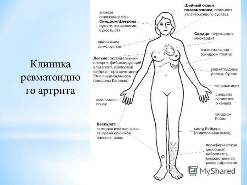 Клиника ревматоидно го артрита