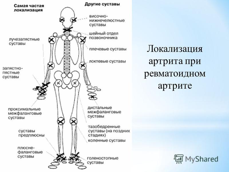Локализация артрита при ревматоидном артрите