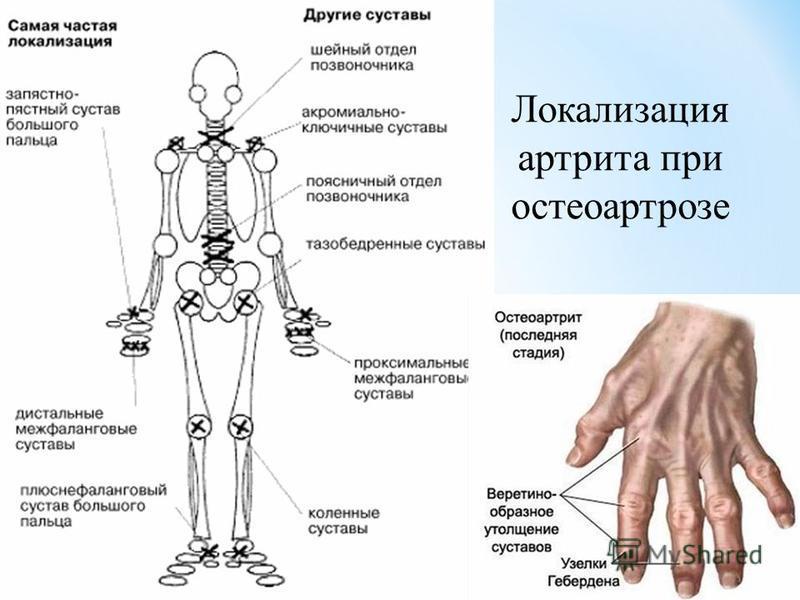 Локализация артрита при остеоартрозе