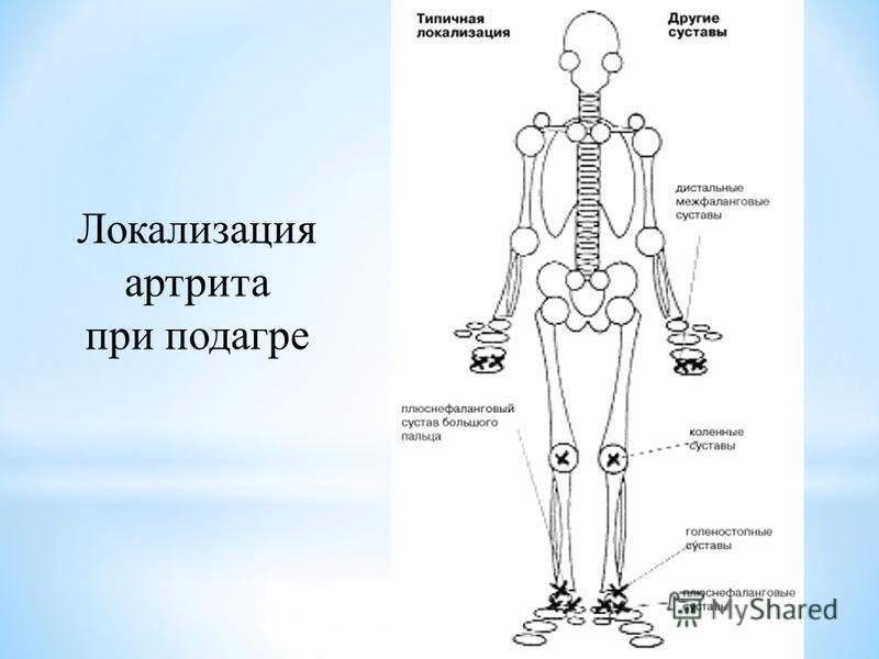 Локализация артрита при подагре