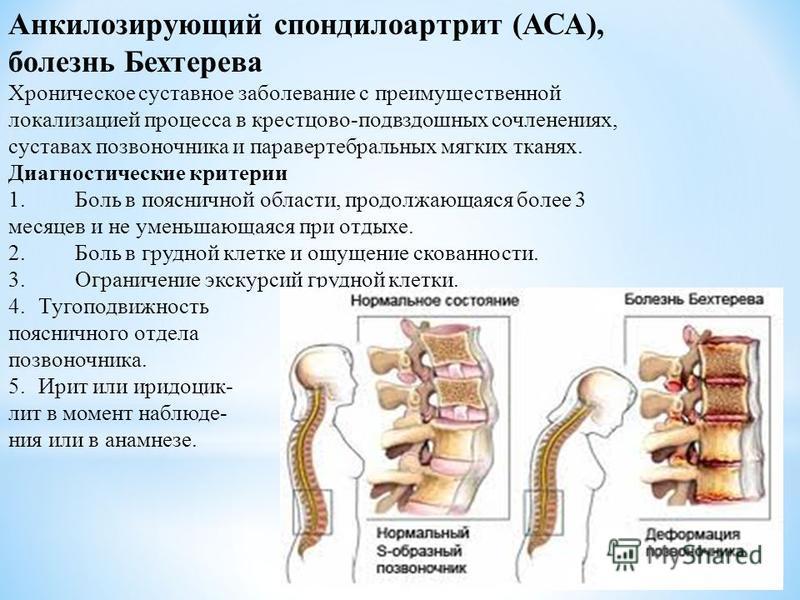 Анкилозирующий спондилоартрит (АСА), болезнь Бехтерева Хроническое суставное заболевание с преимущественной локализацией процесса в крестцово-подвздошных сочленениях, суставах позвоночника и паравертебральных мягких тканях. Диагностические критерии 1