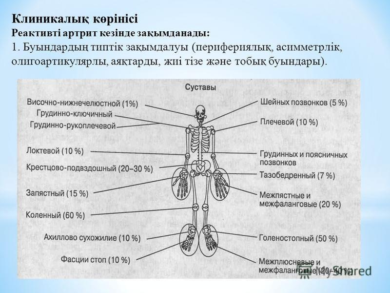 Клиникалық көрінісі Реактивті артрит кезінде зақымданады: 1. Буындардың типтік зақымдалуы (перифериялық, асимметрлік, олигоартикулярны, аяқтарды, жиі тізе және тобық буындары).