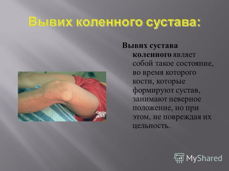 Вывих сустава коленного являет собой такое состояние, во время которого кости, которые формируют сустав, занимают неверное положение, но при этом, не повреждая их цельность.