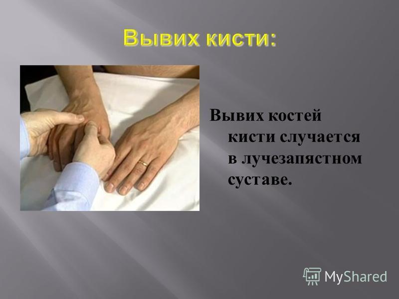 Вывих костей кисти случается в лучезапястном суставе.