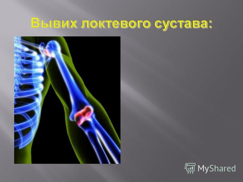 При вывихе локтевого сустава, а также при разрывах или отрывах связок следует проводить неотложное вправление.