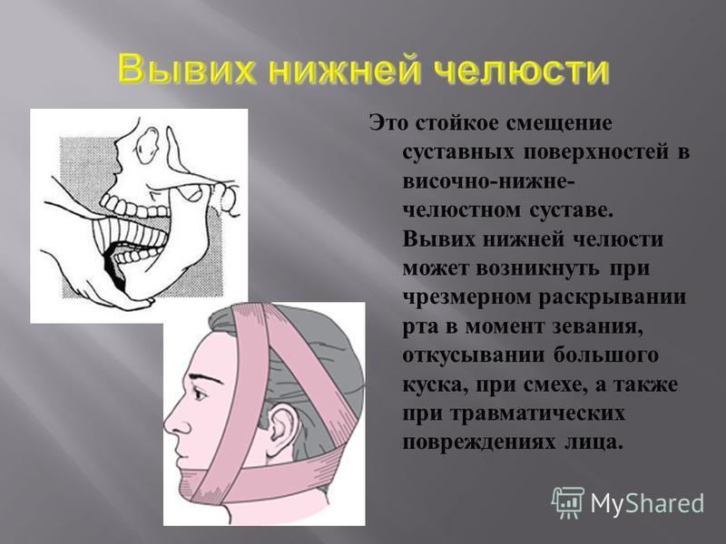 Это стойкое смещение суставных поверхностей в височно - нижнечелюстном суставе. Вывих нижней челюсти может возникнуть при чрезмерном раскрывании рта в момент зевания, откусывании большого куска, при смехе, а также при травматических повреждениях лица