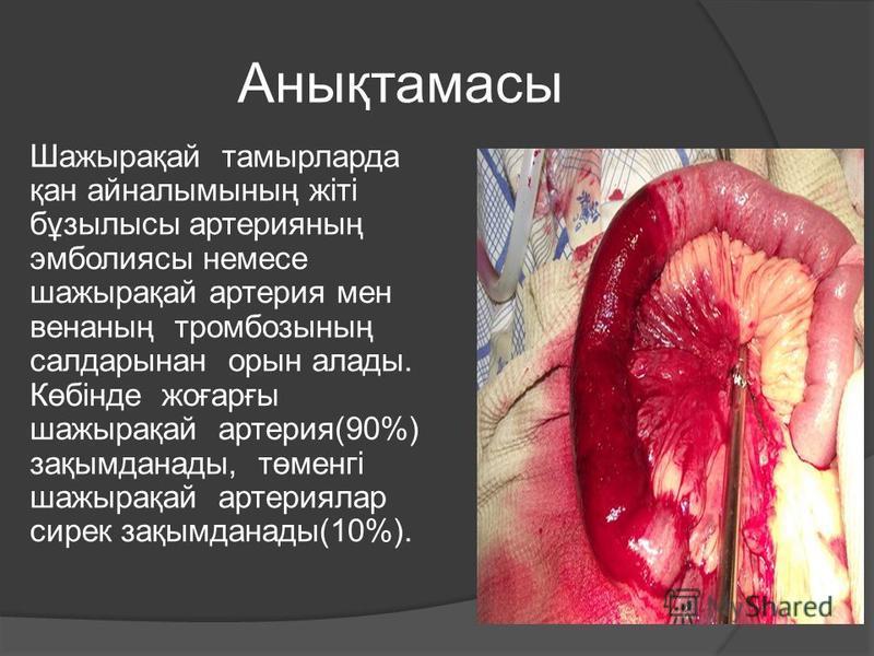 Анықтамасы Шажырақай тамырларда қан айналымының жіті бұзылысы артерияның эмболиясы немесе шажырақай артерия мен венаның тромбозының салдарынан орын аллоды. Көбінде жоғарғы шажырақай артерия(90%) зақымданады, төменгі шажырақай артериялар сирек зақымда