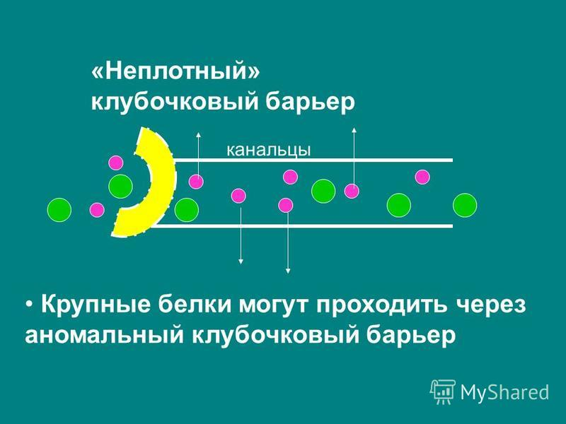 канальцы Крупные белки могут проходить через аномальный клубочковый барьер «Неплотный» клубочковый барьер