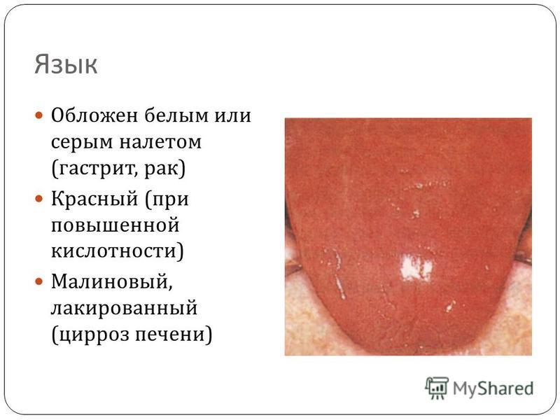 Язык Обложен белым или серым налетом ( гастрит, рак ) Красный ( при повышенной кислотности ) Малиновый, лакированный ( цирроз печени )