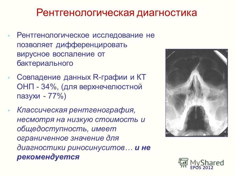 Рентгенологическая диагностика Рентгенологическое исследование не позволяет дифференцировать вирусное воспаление от бактериального Совпадение данных R-графии и КТ ОНП - 34%, (для верхнечелюстной пазухи - 77%) Классическая рентгенография, несмотря на