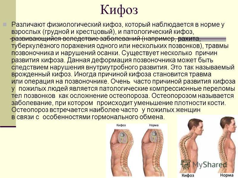 Кифоз Различают физиологический кифоз, который наблюдается в норме у взрослых (грудной и крестцовый), и патологический кифоз, развивающийся вследствие заболеваний (например, рахита, туберкулёзного поражения одного или нескольких позвонков), травмы по