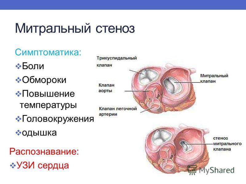 Митральный стеноз Симптоматика: Боли Обмороки Повышение температуры Головокружения одышка Распознавание: УЗИ сердца