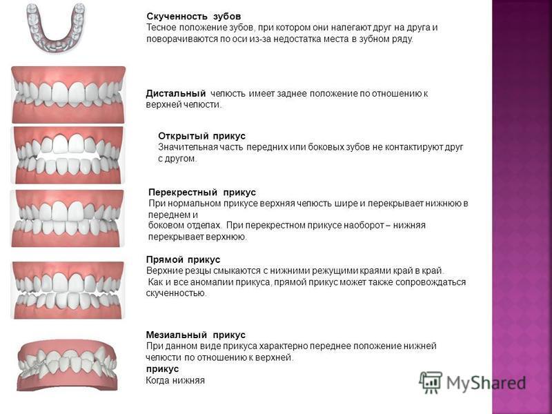 Скученность зубов Тесное положение зубов, при котором они налегают друг на друга и поворачиваются по оси из-за недостатка места в зубном ряду. Дистальный челюсть имеет заднее положение по отношению к верхней челюсти. Открытый прикус Значительная част