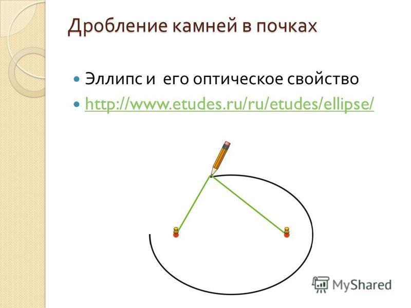 Эллипс и его оптическое свойство http://www.etudes.ru/ru/etudes/ellipse/ Дробление камней в почках