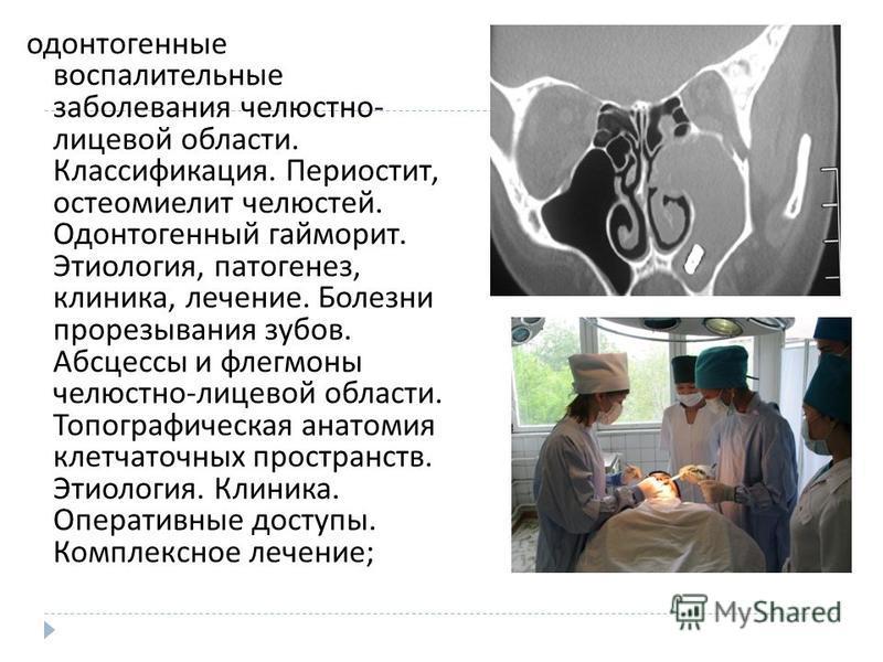 Абсцессы хирургическая стоматология