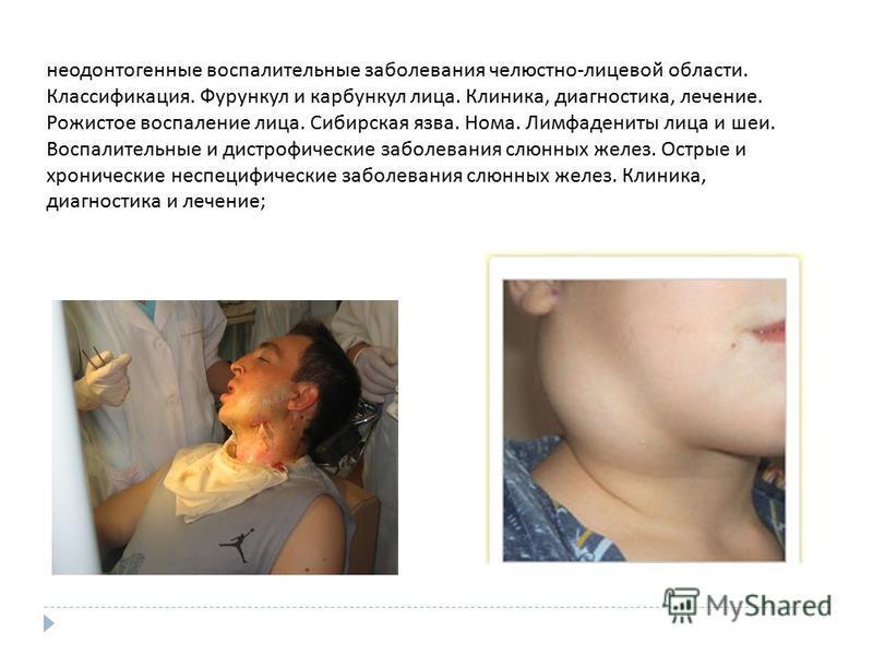неодонтогенные воспалительные заболевания челюстно - лицевой области. Классификация. Фурункул и карбункул лица. Клиника, диагностика, лечение. Рожистое воспаление лица. Сибирская язва. Нома. Лимфадениты лица и шеи. Воспалительные и дистрофические заб