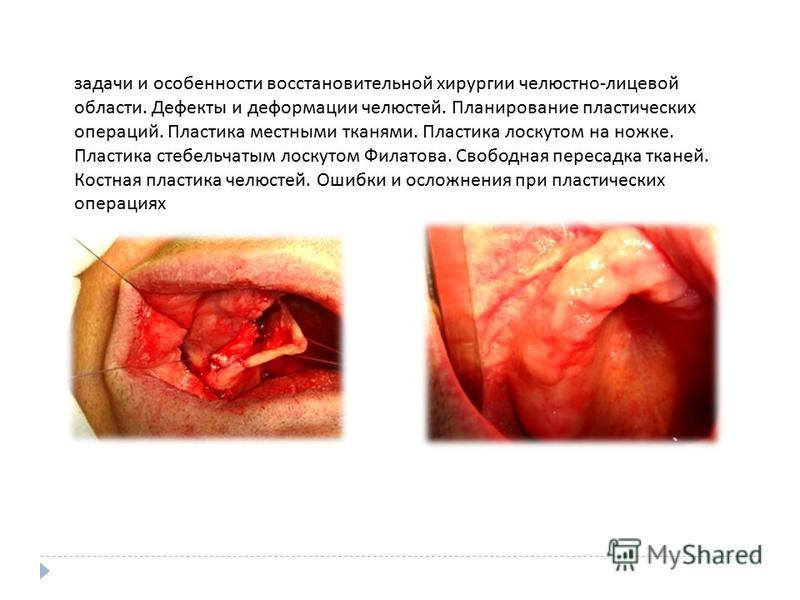 задачи и особенности восстановительной хирургии челюстно - лицевой области. Дефекты и деформации челюстей. Планирование пластических операций. Пластика местными тканями. Пластика лоскутом на ножке. Пластика стебельчатым лоскутом Филатова. Свободная п