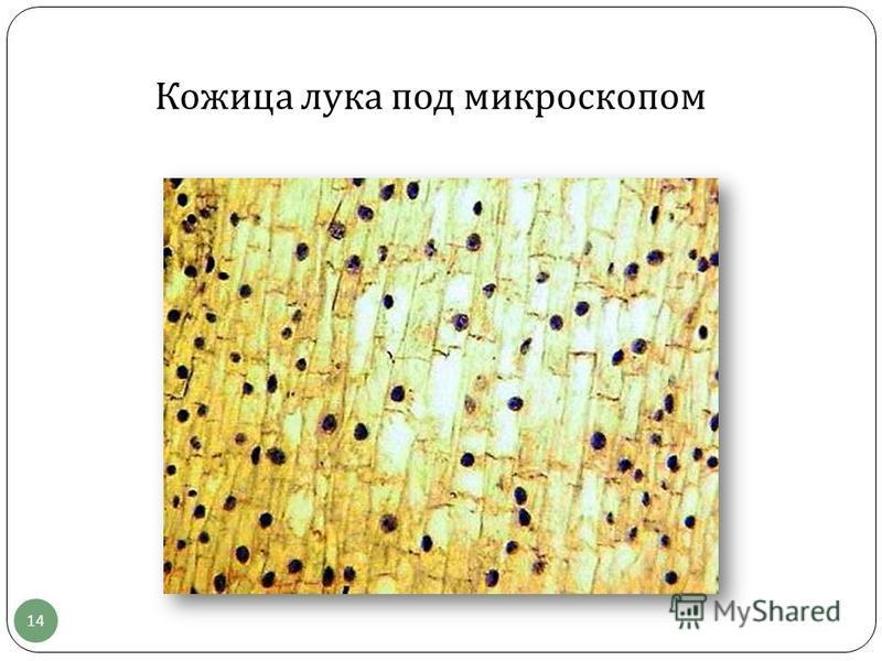 Кожица лука под микроскопом 14