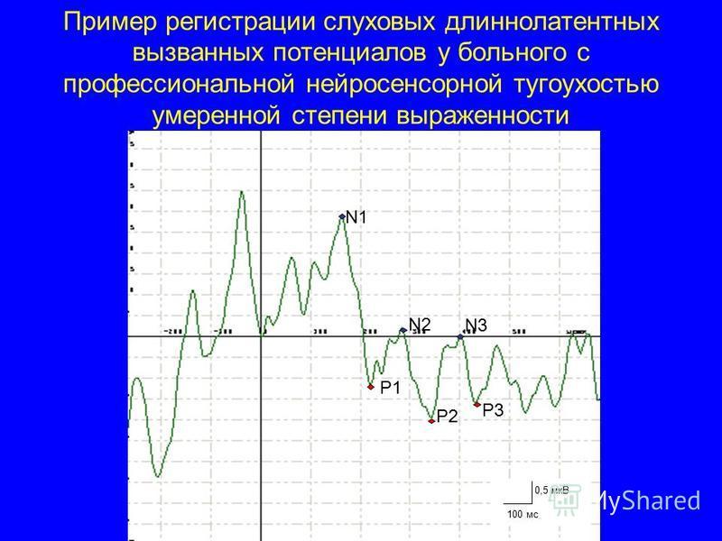 Пример регистрации слуховых длиннолатентных вызванных потенциалов у больного с профессиональной нейросенсорной тугоухостью умеренной степени выраженности N1 N2 P1 P2 P3 N3 0,5 мкВ 100 мс