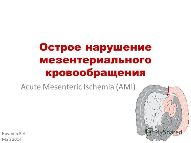 Острое нарушение мезентерийбального кровообращения Acute Mesenteric Ischemia (AMI) Круглов Е.А. Май 2014