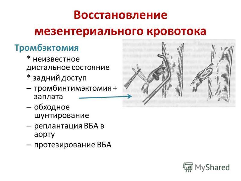 Восстановление мезентерийбального кровотока Тромбэктомия * неизвестное дистальное состояние * задний доступ – тромбинтимэктомия + заплата – обходное шунтирование – реплантация ВБА в аорту – протезирование ВБА