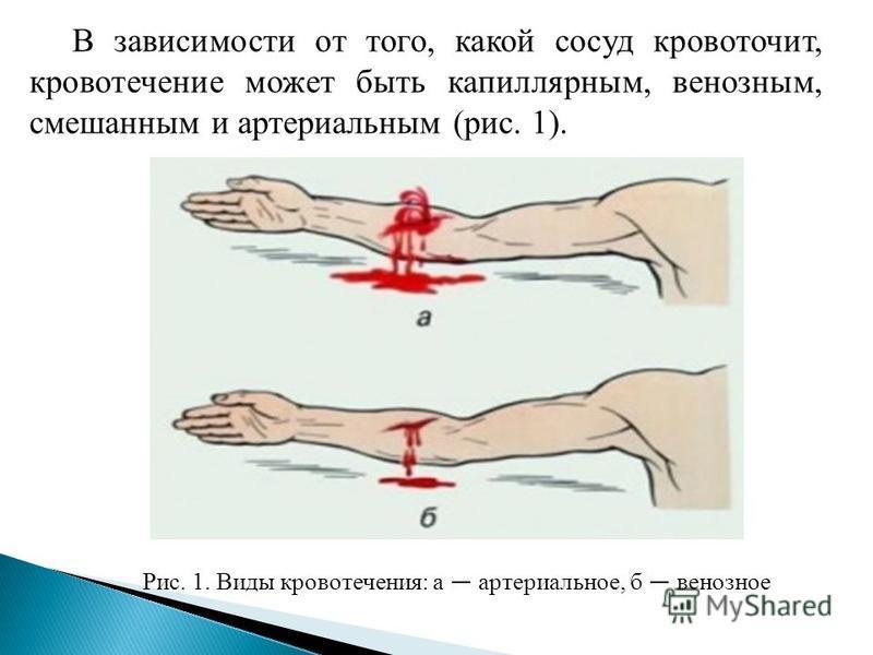 В зависимости от того, какой сосуд кровоточит, кровотечение может быть капиллярным, венозным, смешанным и артериальным (рис. 1). Рис. 1. Виды кровотечения: а артериальное, б венозное