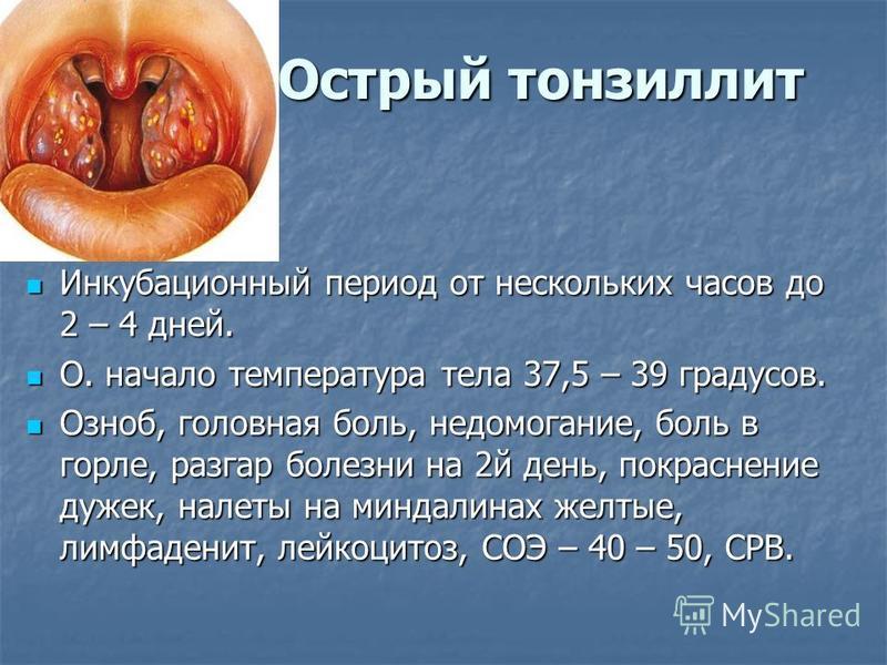 Острый тонзиллит Инкубационный период от нескольких часов до 2 – 4 дней. Инкубационный период от нескольких часов до 2 – 4 дней. О. начало температура тела 37,5 – 39 градусов. О. начало температура тела 37,5 – 39 градусов. Озноб, головная боль, недом