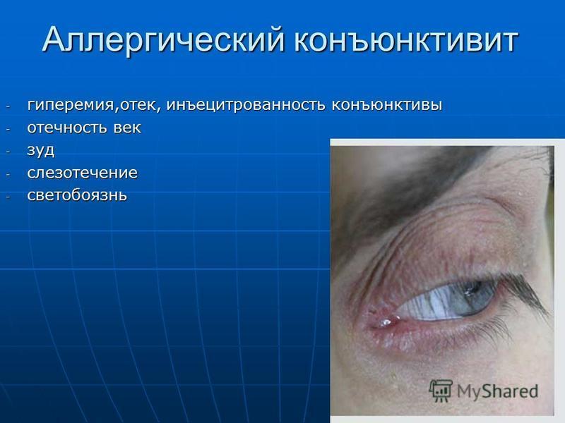Аллергический конъюнктивит - гиперемия,отек, инъецитрованность конъюнктивы - отечность век - зуд - слезотечение - светобоязнь