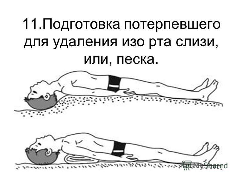 11. Подготовка потерпевшего для удаления изо рта слизи, или, песка.