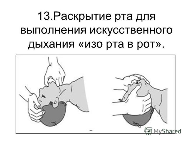 13. Раскрытие рта для выполнения искусственного дыхания «изо рта в рот».