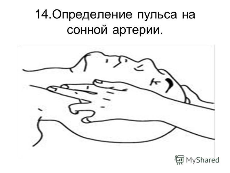 14. Определение пульса на сонной артерии.