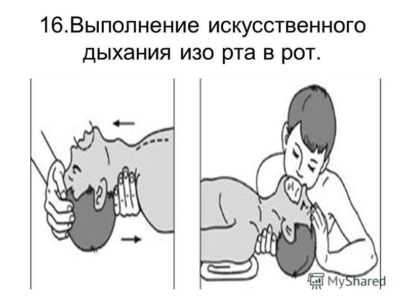 16. Выполнение искусственного дыхания изо рта в рот.