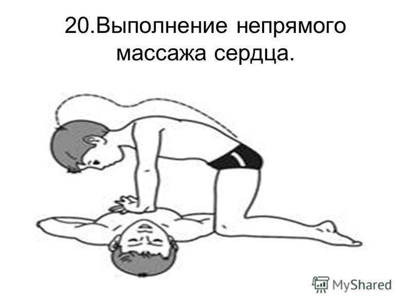 20. Выполнение непрямого массажа сердца.