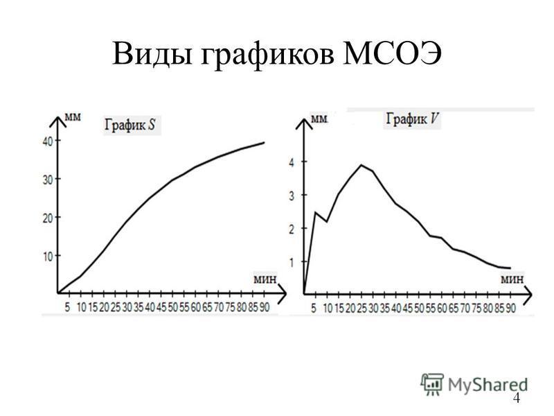 Виды графиков МСОЭ 4