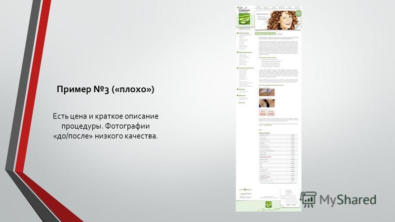 Пример 3 («плохо») Есть цена и краткое описание процедуры. Фотографии «до/после» низкого качества.