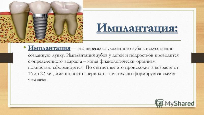 Имплантация: Имплантация Имплантация это пересадка удаленного зуба в искусственно созданную лунку. Имплантация зубов у детей и подростков проводится с определенного возраста – когда физиологически организм полностью сформируется. По статистике это пр