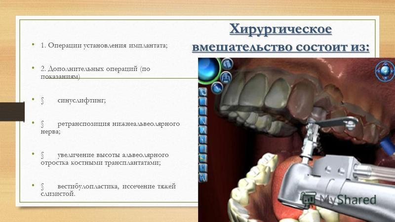 Хирургическое вмешательство состоит из: 1. Операции установления имплантата; 2. Дополнительных операций (по показаниям) § синус лифтинг; § ре транспозиция нижнеальвеолярного нерва; § увеличение высоты альвеолярного отростка костными трансплантатами;